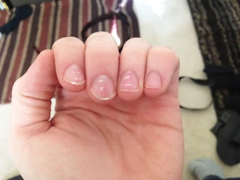 Основные причины появления «белых пятен» на ногтях у ребенка
