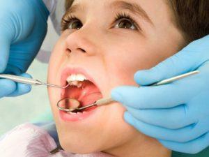 Лечение кариеса у детей зависит от стадии патологического процесса