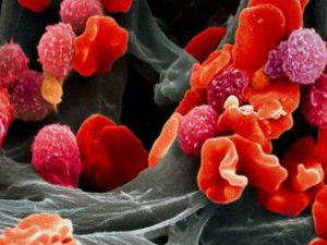 Ученые: появились результаты в лечении тяжелой формы детской лейкемии