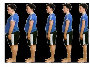Предупреждение детского ожирения: системный подход