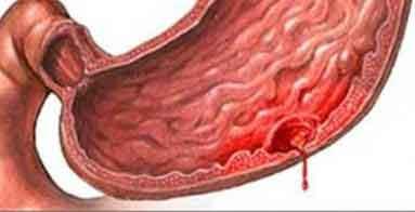Хронические гастродуодениты и язвенная болезнь у детей
