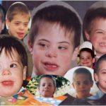 У ребёнка болезнь Дауна