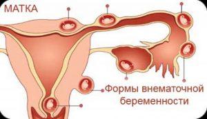 Признаки внематочной беременности Следующий за вами