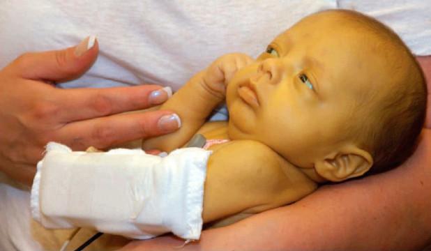 Желтушка у новорожденных: причины, симптомы