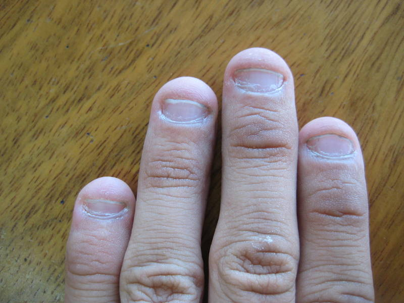Фото ногти грызут