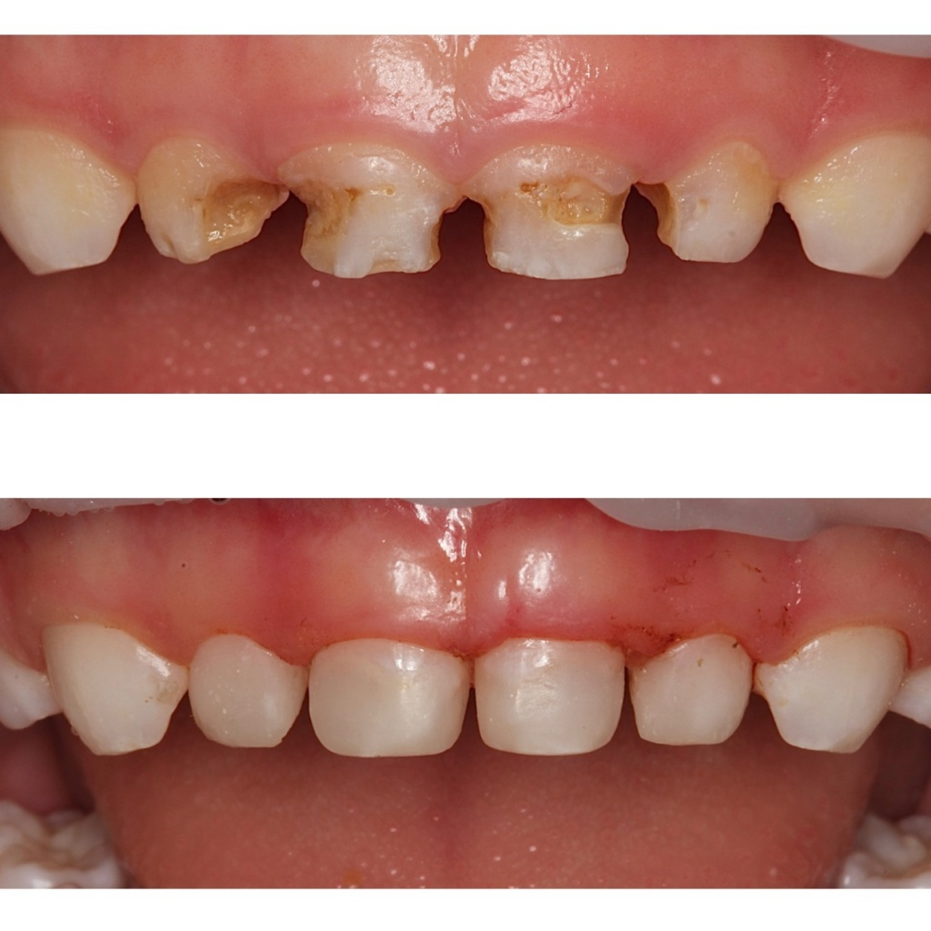 Лечение молочных зубов у ребенка
