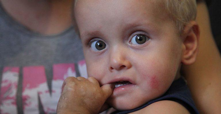 Болезни детей: «синдром бабочки», что это и как лечить?