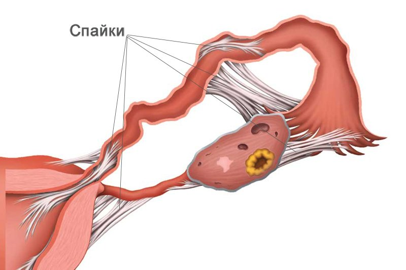 Внематочная беременность: признаки и сроки