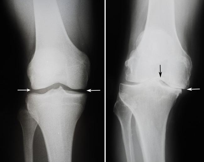 Замена коленного сустава, полная и частичная. Этапы проведения процедуры