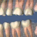 Зубы мудрости – рудимент