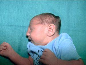 Микроцефалия у детей: причины, симптомы, продолжительность жизни