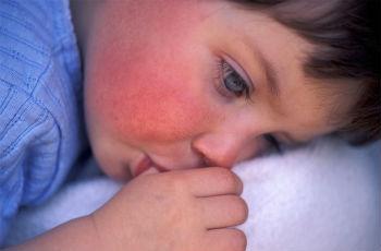 Скарлатина у детей: симптомы, формы, лечение, отличие от других болезней