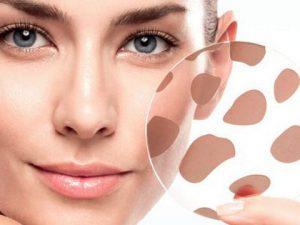 Как избавиться от пигментных пятен? Советы косметологов