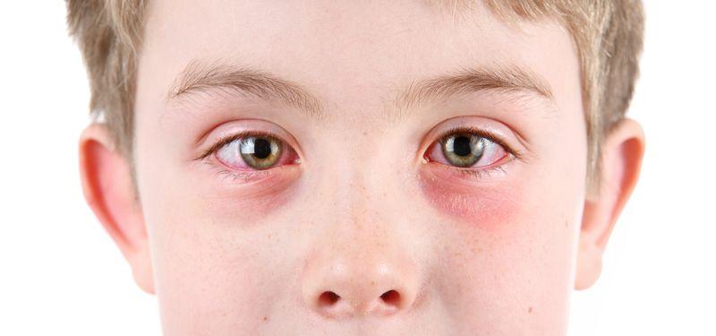 Виды поражения глаз в детском возрасте