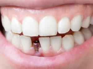 Услуги стоматологической клиники «Имплант Сити»