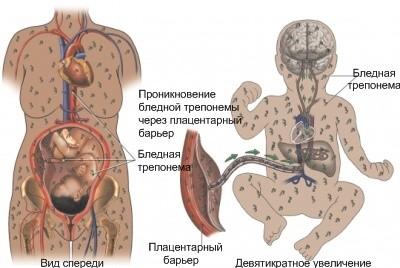 Врожденный сифилис