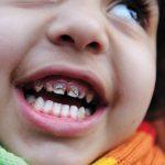 Отравление свинцом у детей: как определить и вылечить
