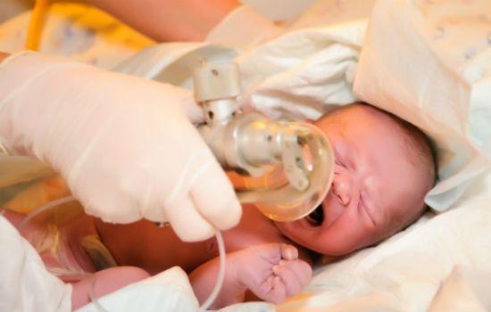Каковы причины и симптомы асфиксии у новорожденных?