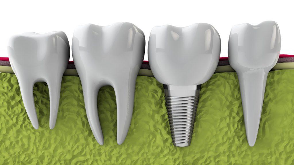 Как проводится классическая имплантация зубов