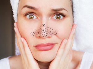 Как избавиться от основных проблем с кожей