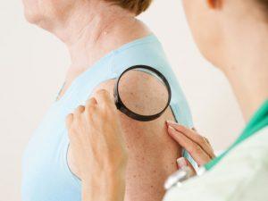 Лечение болезней кожи