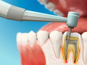 Как ухаживать за зубами детей с особенностями развития?
