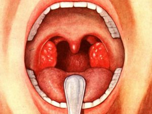 Увеличены миндалины у ребенка – гипертрофия гланд у детей