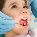 Молочные зубы - особенности, когда начинают резаться и уход за ними