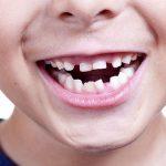 Профилактика стоматологических заболеваний у детей