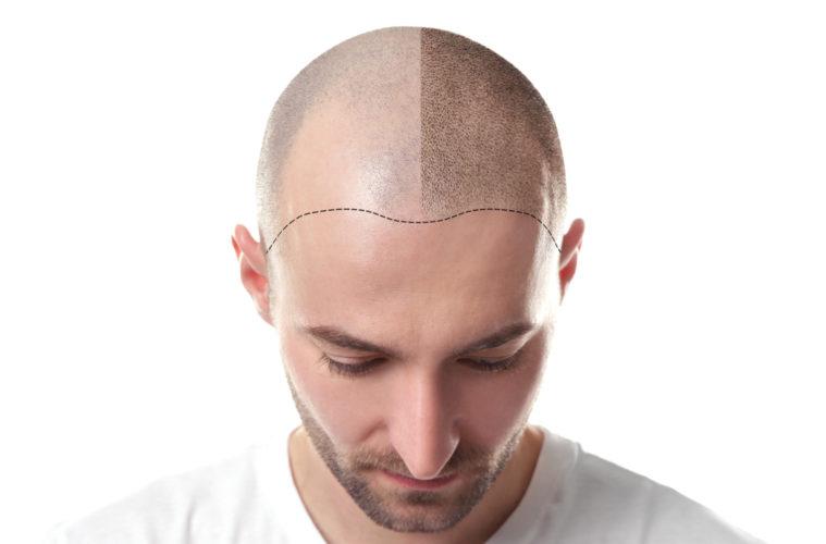 Выполняем качественное восстановление волос на голове