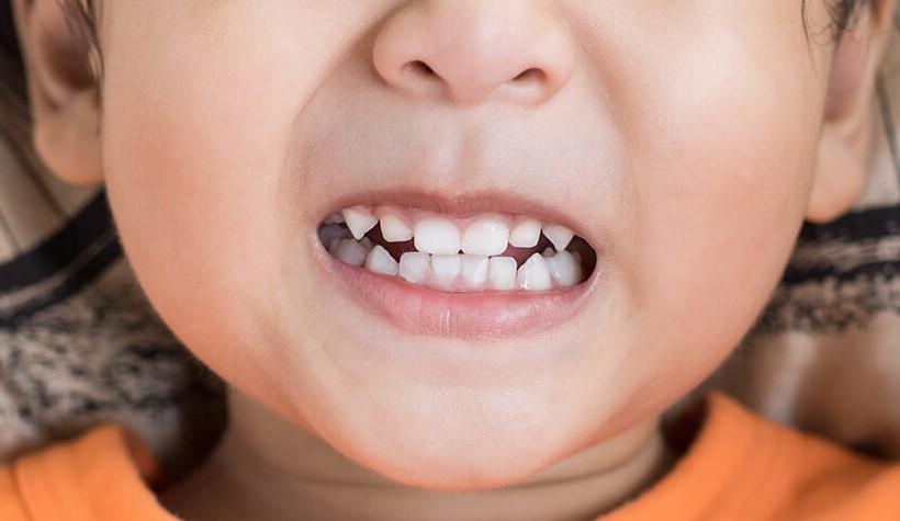 Бруксизм: почему ребёнок скрипит зубами и что с этим делать