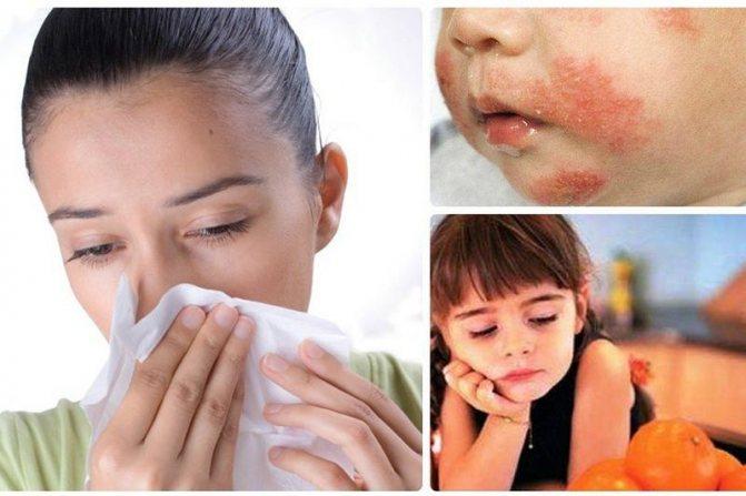 Частое применение детских кремов повышает риск аллергии