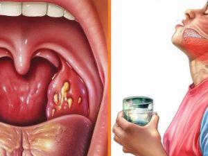Больное горло у детей? – Мы с этим хорошо справляемся