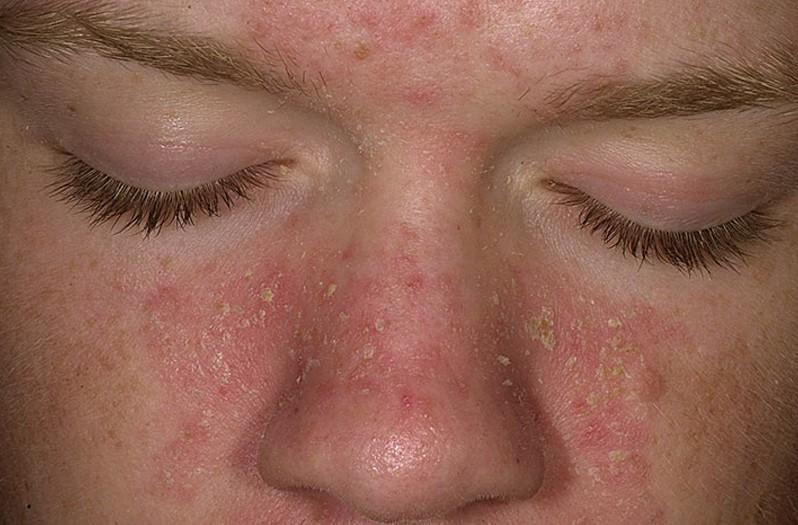 Дерматит кожи лица и его лечение