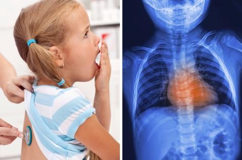 Кашель у ребенка: виды, причины, лечение